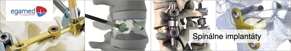 Riešenia pre torakolumbálnu chrbticu