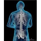 Spinálne implantáty