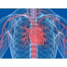 Intervenčná kardiológia